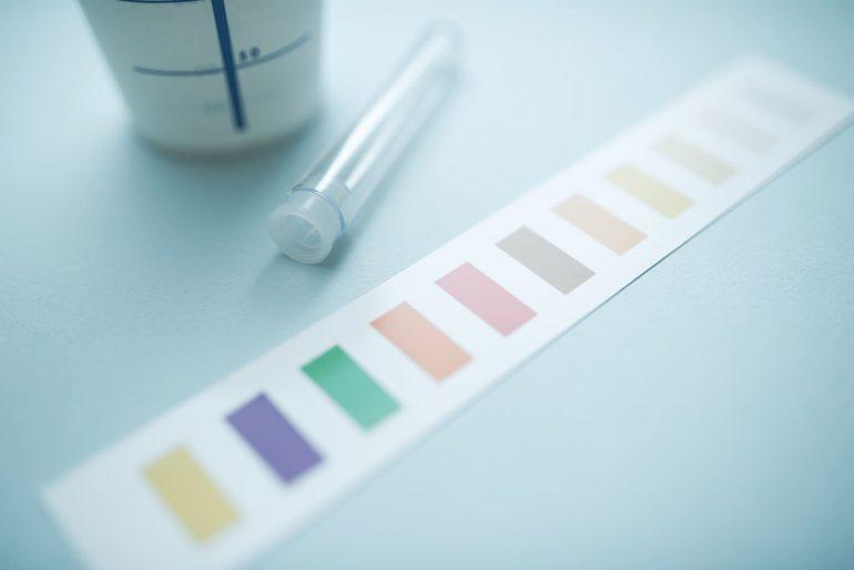 尿検査|盛岡市で糖尿病の検査は二宮内科クリニック