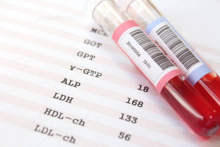 血液検査|盛岡市で痛風の治療は二宮内科クリニック
